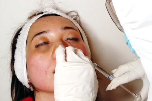 Filler Kantung Mata Klinik Kecantikan Stephanie Skincare Tangerang