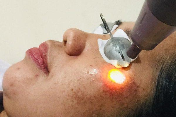 laser nd yag e1598346988976