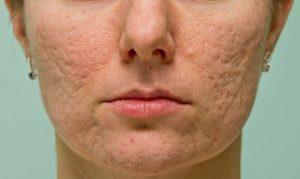 figure 2 acne scars