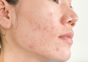 figure1 acne vulgaris