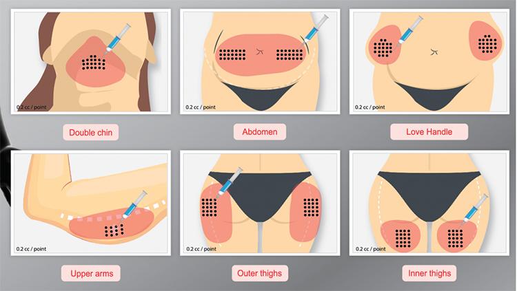 Slimming Stephanie Skincare