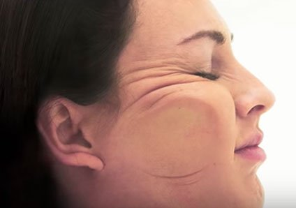BEFORE & AFTER USING ANTI-WRINKLE PILLOW - NURSE JAMIE HEALTHY SKIN SOLUTIONS